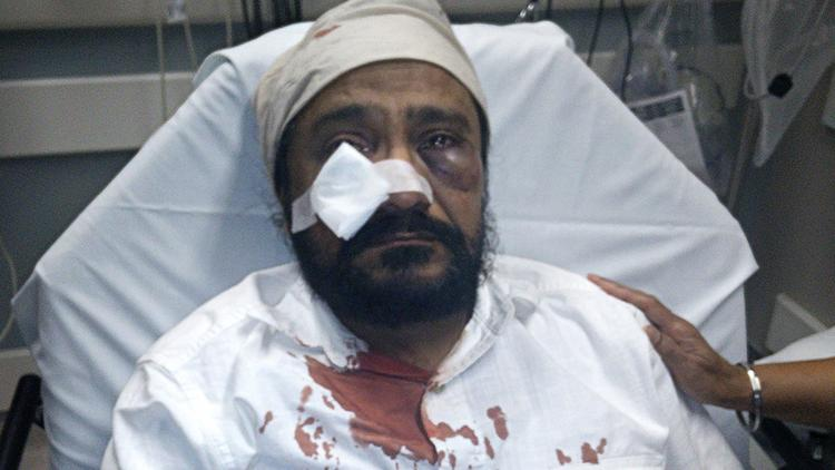 "Inderjit Mukker was hospitalized after being punched in the face by an assailant who allegedly yelled, ""Terrorist! ... Go back to your country."" (Sikh Coalition)"
