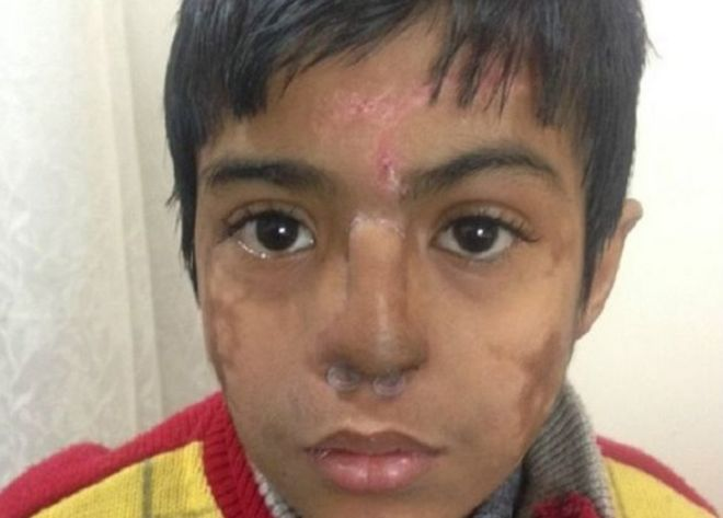 Arun Patel's nose was badly damaged and disfigured when he suffered from pneumonia as a baby.